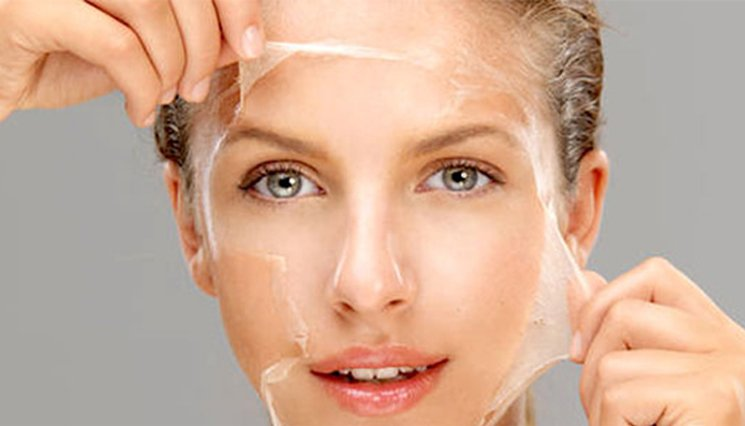 What is Chemical Peel?