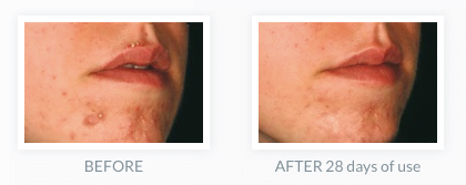 acne-management-professional-treatment-toronto