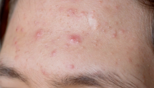 acne-toronto-treatment
