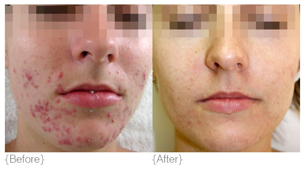 acne_treatment-toronto