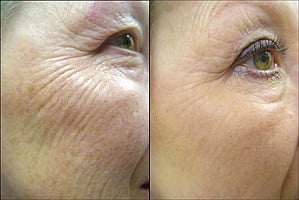 MICRO-CURRENT FACE LIFTING AND TONING_Toronto_1
