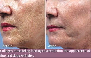 MICRO-CURRENT FACE LIFTING AND TONING_Toronto_2