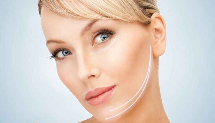 Non surgical Radio Frequency Face lift
