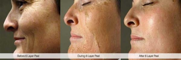 pro-alpha-six-layer-peel-toronto