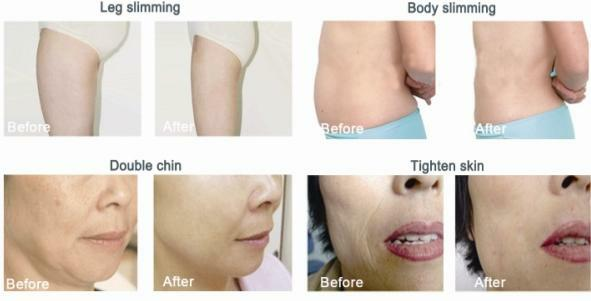 Slimming-Contouring-Toning-Treatments-Toronto