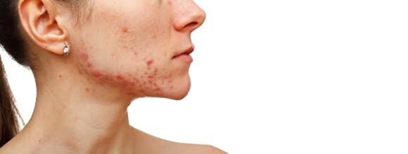 Treatment-of-Acne-Toronto