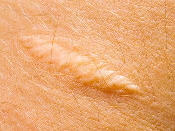 scar-1