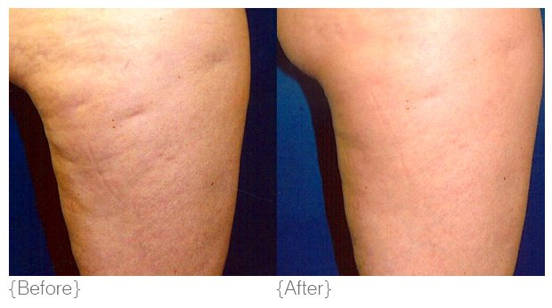 cellulite_treatments-toronto