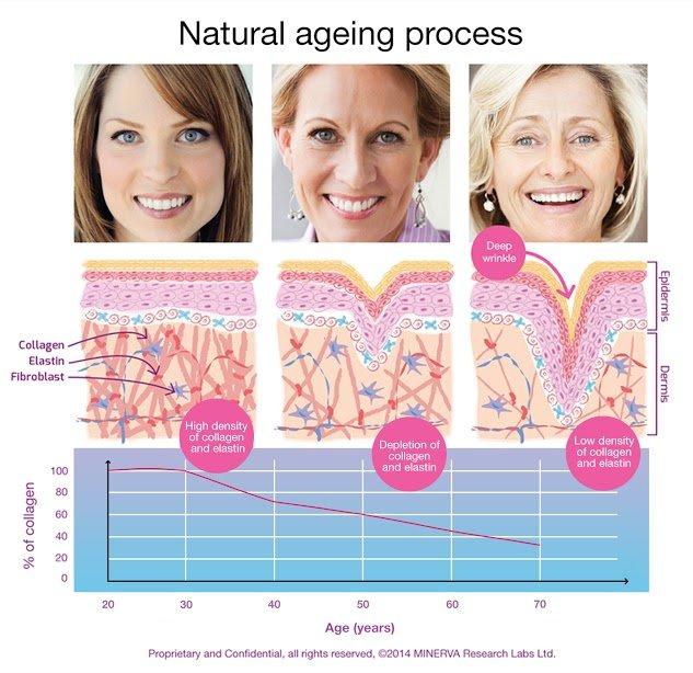 wrinkles skin