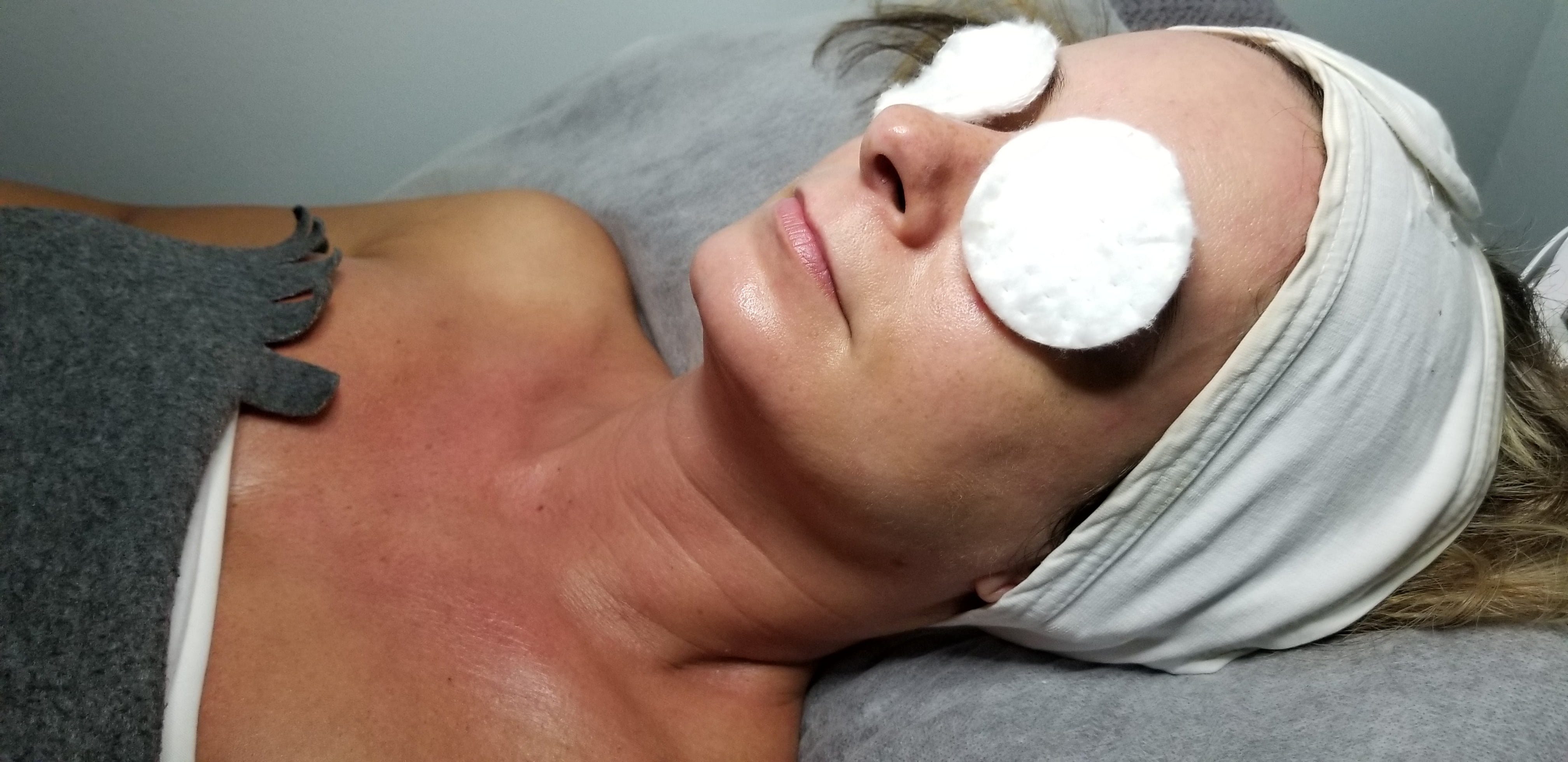 The Benefits of Having an Enzyme Facial and Why you Should Try One